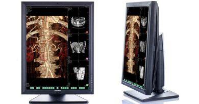 Цветной медицинский монитор JUSHA-C23C