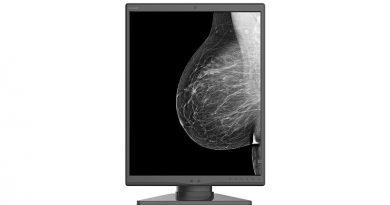 Монохромный диагностический монитор JUSHA-M550 для маммографии
